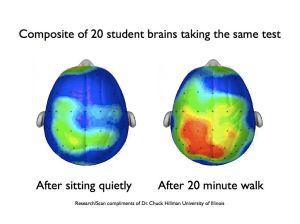 brain-scan-003